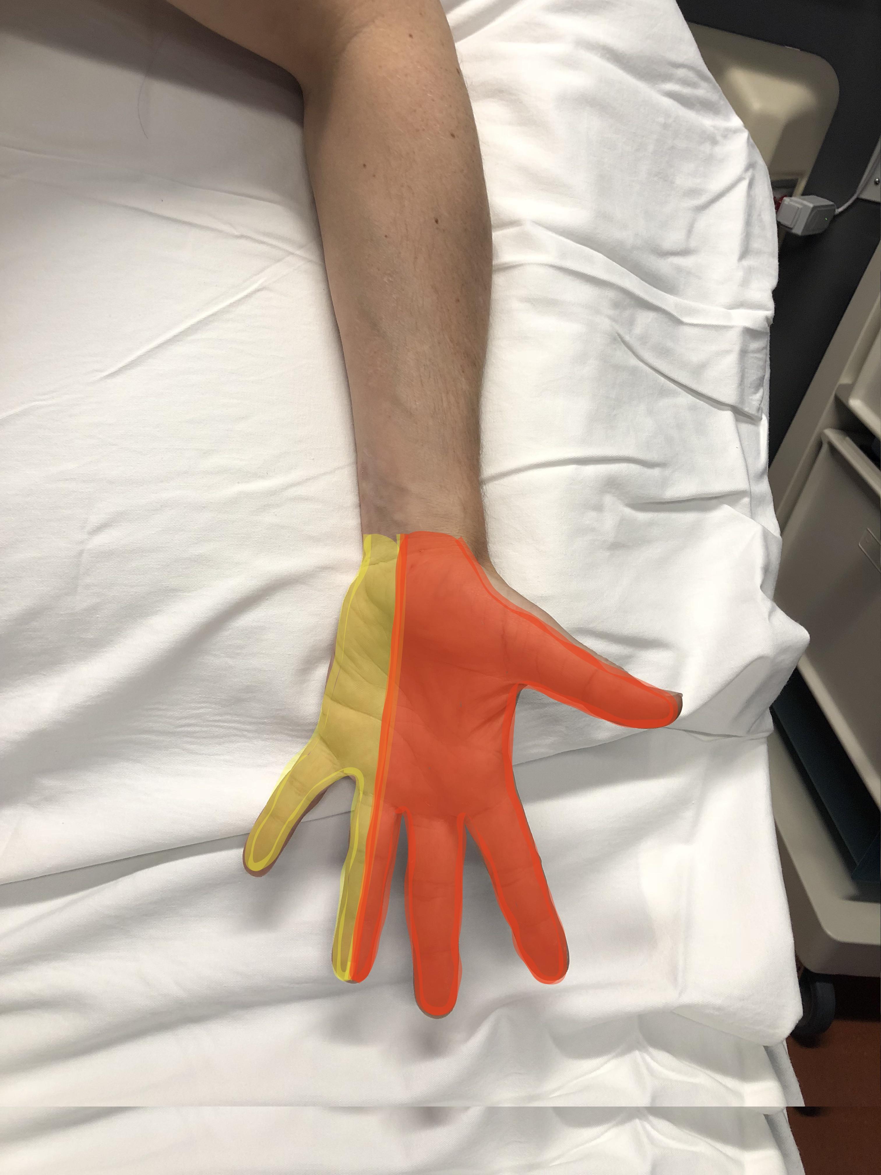Palm nerve